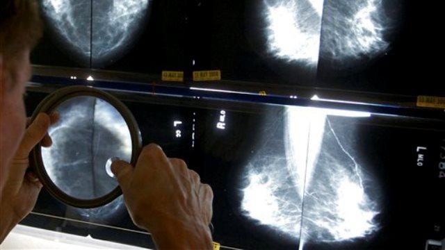 mammogram_147630