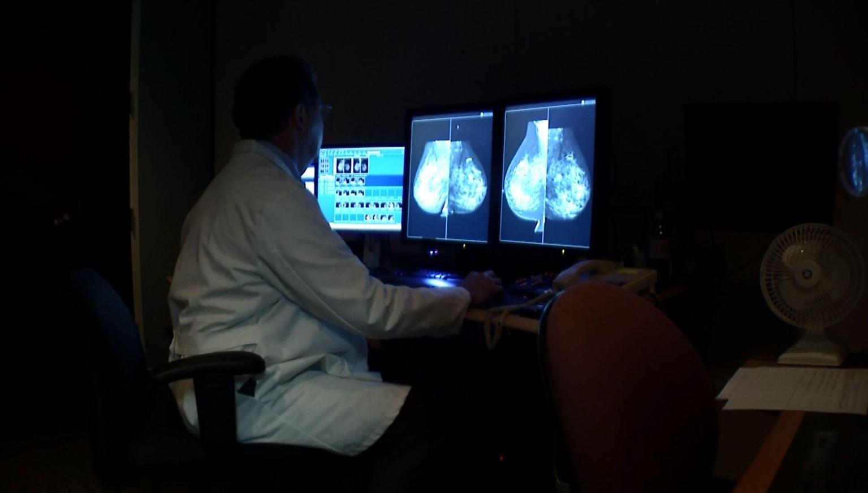 st. joseph's candler mammogram study_350844