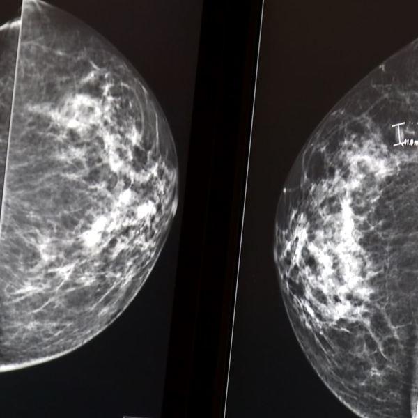 st. joseph's candler mammogram study_350845