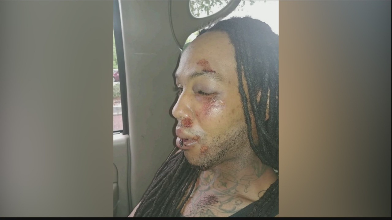 Savannah Police say man was injured in fall, not by excessive force